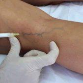 Tratamento-de-varizes-com-espuma